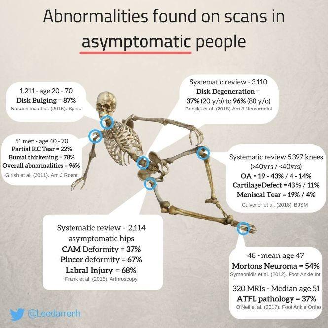 abnormalitie mri scan